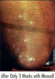 psoriasis after miracell